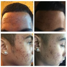 #aloeclear When Justin used the wash and tonic for the first time, his face felt smooth and velvety.  The next morning, his immediate reaction was that his pimples started shrinking overnight.  Every day they kept shrinking and disappearing. He is very happy... Justin J