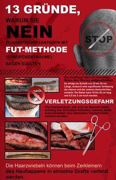 FUT Haarverpflanzung Haartransplantation Streifenmethode Nachher Fotos Ergebnisse Donor zone 2/6