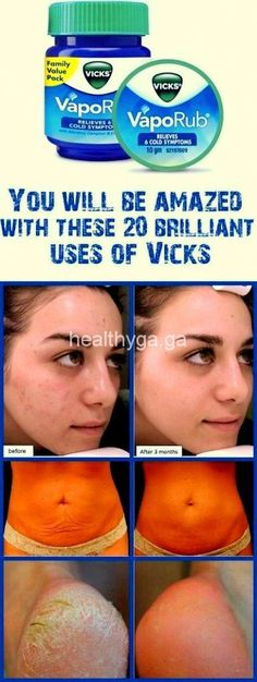 Will Be Amazed With These Brilliant Uses Of Vicks! You Will Be Amazed With These Brilliant Uses Of Vicks! You Will Be Amazed With These Brilliant Uses Of Vicks! Vicks Vapor Rub, Get Rid Of Warts, Skin Tag, Mouthwash, Teeth Whitening, Beauty Hacks, Beauty Tips, Beauty Secrets, Hair Loss