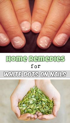 Home remedies for white dots on nails