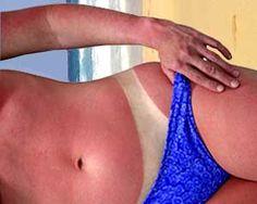 Cáncer de piel: cada cuatro días muere una persona en Uruguay