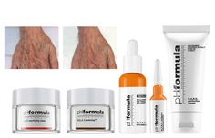 The pHformula H.A.N.D resurfacing treatment is formulated to assist in superficial exfoliation and cell renewal, prevent and visibly reduce the signs of skin ageing while providing intensive moisturising care. Don't neglect your hands - speak to your skin specialist today. #antiaging #skincare #treatment