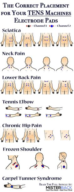 TENS is acknowledged and claimed to be a non-invasive and drug-free method for pain relief. How do I place my electrode pads to my tens unit or tens machine in a correct way? No matter if you have sciatica neck pain lower back pain tennis elbow chroni Cupping Therapy, Massage Therapy, Fitness Workouts, Tens Electrode Placement, Tens Unit Placement, Qi Gong, Drug Free, Pain Management, Neck Pain