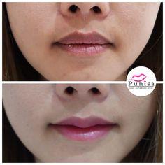#Punisaclinic #ศัลยกรรม #ปาก #ศัลยกรรมปาก #ปากบาง #ปากกระจับ #ปากปีกนก  #Beauty #Number1 #Lips #LipReduction #LipSurgery #Professional #Lip #Reduction #Surgery #Thailand #plasticsurgery #lipreductionsurgery #thailand #doctorthinlips#Punisaclinic #lipsurgery #lipreduction#lipreductionsurgery #asianlips #plasticsurgeons#plasticsurgery #Thailandsurgery Lip Surgery, Lips, Jewelry, Jewlery, Jewerly, Schmuck, Jewels, Jewelery, Fine Jewelry