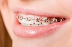The metal braces are effective, but many are offended as they are exposed on the teeth. So now one can look out for the invisible braces that are available in different options. For more details visit us