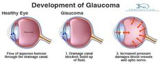 Home remedies to treat glaucoma. How to get rid of glaucoma fast? Natural Treatment for glaucoma. Cures for glaucoma. Low Blood Sugar Symptoms, Diabetes Blood Sugar Levels, High Blood Sugar Causes, Lower Blood Sugar Naturally, High Blood Sugar Levels, Blood Sugar Diet, Glaucoma Symptoms, Diseases Of The Eye, Optic Nerve