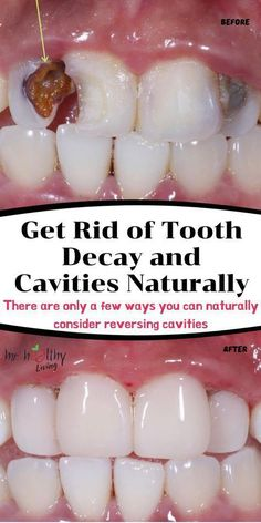 tooth + teeth + heal tooth decay + tooth ache relief + tooth cavity remedies + tooth cavity remedies oral health + oral health + tooth decay remedies + tooth decay remedies heal cavities + tooth decay remedies heal cavities homemade toothpaste + tooth decay remedies at home + tooth decay remedies baking soda + tooth decay remedies it works + reverse tooth decay #oralhealth #tooth #teeth #healtoothdecay #toothcavityremedies #toothcavity