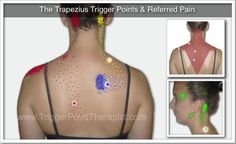 The Trapezius Trigger Points & Referred Pain