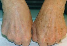 Treat pigmentation ...... Visit healers.co.in/skin-treatment.html !!!