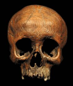 DAYAK TRIBE:  HUMAN HEAD HUNTED VICTIM'S SKULL  HAND CARVED HUMAN BONE  THE DAYAK TRIBE, FROM BORNEO ISLAND  INDONESIA, CARVE DESIGNS INTO THE SKULLS  OF THEIR HEADHUNTED VICTIMS AND INSERT WOODEN FIGURES.