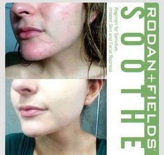 Ally has battled sensitive skin rosacea for many years. Here are her before and after pictures from using Rodan+Fields SOOTHE regimen below. If you're looking for these AMAZING results for yourself or someone you know I can help. Message me to get started!