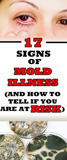 17 Signs of Mold Illness (and How to Tell If You Are at Risk) - my lovely world Beauty Care, Beauty Hacks, Beauty Tips, Symptoms Of Mold, Cute Pug Pictures, Fitness Tips, Health Fitness, Cute Pugs, Alternative Medicine