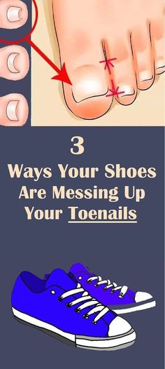 3 Ways Your Shoes Are Messing Up Your Toenails - Health & Fitness - gewicht Natural Health Tips, Health And Beauty Tips, Health Advice, Health And Fitness Expo, Wellness Fitness, Health And Wellness, Oral Health, Health Diet, Health Heal
