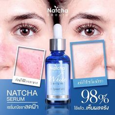 Natcha White Serum is the latest formula that is 20 times more concentrated than before for 10 times more radiant and bright skin naturally. Combining the values of concentrated Alpha Arbutin and Botanical Extract, it works together in 4 steps for maximum efficiency. The product restores youthfulness to skin, while revealing bright and beautiful skin, and reducing wrinkles, melasmas, freckles,... Skin Firming, Skin Brightening, Acne Help, Even Out Skin Tone, Cosmetic Design, Bright Skin, Dull Skin, Dark Spots, Freckles