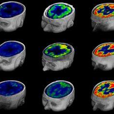 Brain scans predict consciousness return in vegetative patients
