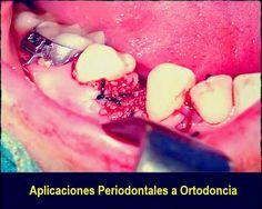 Ortodoncia-Periodoncia