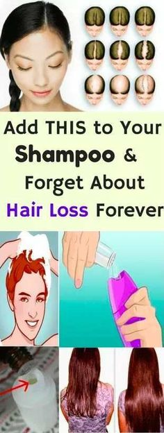 Add This Secrete Thing In Your Shampoo And Forget About Hair Loss!! – L/H