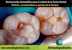 restauracion-atraumatica-dental