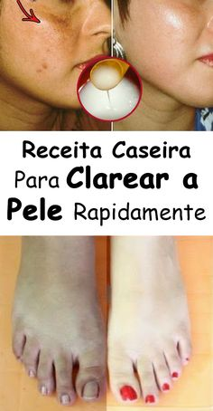 Receita Caseira Para Clarear a Pele Get Healthy, Healthy Skin, Weight Loss Tips, Lose Weight, How To Remove, How To Make, Manicure And Pedicure, Stay Fit, Face And Body