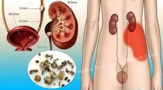 Watch This Video Wonderful Best Herbs for Kidney Cleansing Ideas. Important Best Herbs for Kidney Cleansing Ideas. Kidney Detox Cleanse, Cleanse Your Liver, Holistic Remedies, Natural Home Remedies, Health Remedies, Natural Detox, Natural Healing, Causes Of Kidney Disease, Whole Grain Foods