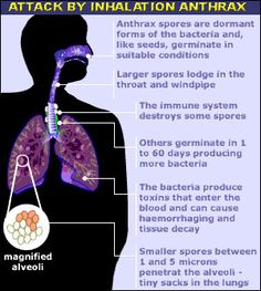anthrax symptoms pictures - Google Search