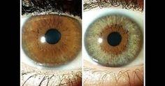 El color de ojos es un rasgo genético que está determinado por la cantidad y la distribución de melanina en el iris. Es un proceso complejo en el que intervienen varios genes en pos del resultado final. De igual forma son tres los elementos del iris que contribuyen a darle su color: la melanina del epitelio del iris, la melanina de la parte anterior del iris y la densidad del estroma del iris. Además de la melanina otro pigmento que actúa en el proceso es el lipocromo.