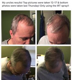 Experiencing hair loss??? Monat is chemical free and clinical proven to regrow healthy hair. Guaranteed hair growth