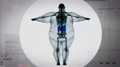La radiografía de un hombre de 410 kilos de peso. Unusual Photos