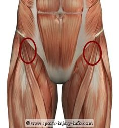 Hip Flexor strain - one of the muscles that torques and causes pelvic misalignment