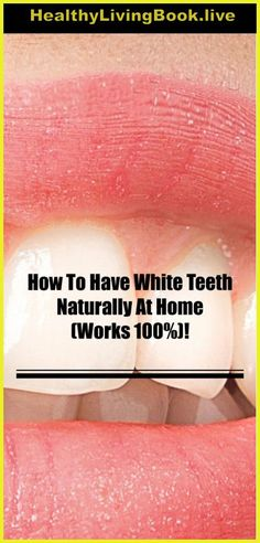 How To Have White Teeth Naturally At Home (Works – Natural Remedies Box Teeth Whiting At Home, White Teeth, Natural Remedies, It Works, The 100, Healthy Eating, Box, Nature, Eating Healthy