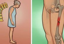 Остеопороз — скрытая угроза, о которой вы даже и не подозреваете! Симптомы, риски и народные рецепты помогут избежать его!