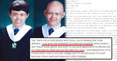 [Trending Now] This Man Suffering From A Disease Took All The Judgement Of All The People As A Motivation. Now He Is A Graduate Of Psychology! INSPIRING!