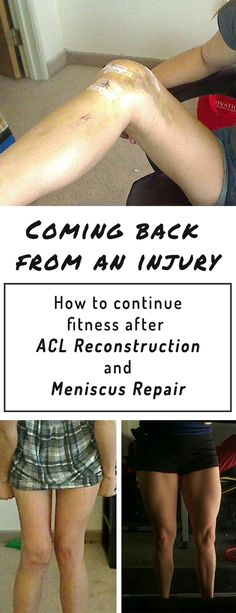 Injuries can be devastating, especially when you're a fitness person. Recovery can take years and sometimes we still never quite feel the same, but it doesn't have to be that way. Here are some of my tips on how I came back from an ACL reconstruction and meniscus repair.