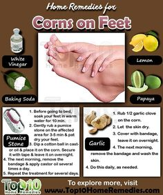 Prev of Corns are small circles of hard, thickened skin that develop… – Care – Skin care , beauty ideas and skin care tips Top 10 Home Remedies, Natural Home Remedies, Natural Healing, Arthritis, Corn On Toe, Corn Feet, Get Rid Of Corns, How To Remove Corns, Cooking With Turmeric
