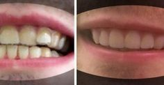 A College Student Saved Thousands Of Dollars By His Own Braces, DIY, A College Student Saved Thousands Of Dollars By His Own Braces Source by hello_stacy. Clean Beauty, Diy Beauty, Outdoor Smoker, Kids Braces, Party Favors For Adults, Diy Outdoor Weddings, Diy Crafts For Adults, Outdoor Pergola, Tiny House On Wheels