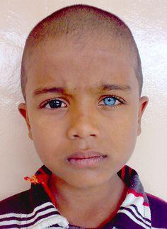 Dark brown and bright blue eyes.