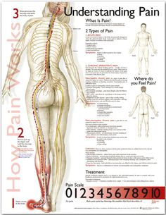 Understanding Pain Poster - Anatomical Chart Company - AnatomyStuff
