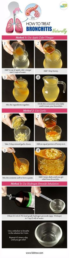 3 NATURAL Methods of Treating BRONCHITIS Naturally: 1) ACV = AppleCiderVinegar ~ 1 tbsp HONEY 2) 2 tbsp Minced Garlic Cloves ~ 2 tbsp of HONEY 3) Hydrogen-Peroxide ~ WATER