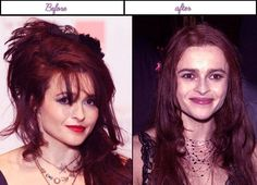 After before pictures of Helena Bonham Carter when she experienced her plastic surgery in latest calendar year - Helena Bonham Carter has such a beautiful face and a sexy body. And because of all these' Helena found her way to the sought-after main entrance of the glorious gate of Hollywood and started crafting her own niche. At first' she was pretty amazing with what she does and was doing... #HelenaBonhamCarterAfterBeforeSurgery, #HelenaBonhamCarterAfterPlasticS