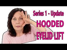 Face Exercise for Droopy Eyelids How to Open & Close the Eyes Correctly How to Place Your Fingers and Hands Correctly First Part of the 3 Part Eye Exercise Second Part of … source Face Lift Exercises, Neck Exercises, Facial Exercises, Hooded Eyelids, Droopy Eyelids, Yoga Facial, Facial Muscles, Exercise Coach, Excercise