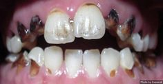 Effects of Methamphetamine on your teeth.