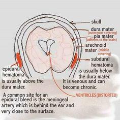 Subarachnoid Hemorrhage vs Subdural Hematoma | Dear Nurses: EPIDURAL