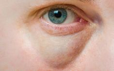 Water Retention Remedies How to get rid of bags under eyes fast - How to get rid of bags under eyes fast? How to get rid of under eye bags? Get rid of under eye bags and puffy eyes. How to get rid of eye bags overnight? Water Retention Remedies, Top 10 Home Remedies, Natural Remedies, Dark Circles Under Eyes, Eye Circles, Under Eye Bags, How To Get Rid Of Bags Under Eyes, Puffy Eyes, Tips Belleza