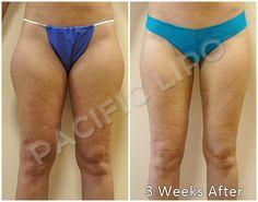 liposuction victoria bc
