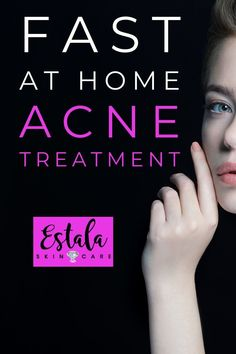 Have you tried this fast at home acne treatment? Learn how to get rid of stubborn acne overnight and what is the best thing for pimples from Estala Skin Care. Back Acne Treatment, Acne Treatments, Clear Skin Tips, Skin Care Remedies, Pimples Remedies, How To Get Rid Of Acne, How To Treat Acne, Face Care, Skin Care Tips