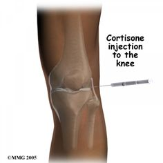 Is steroid injection bad for your knee?
