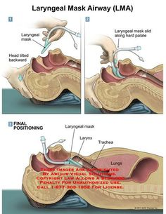 Endotracheal intubation Source by stewipanzon Related posts: No related posts. Surgical Nursing, Surgical Tech, Nursing School Notes, Medical School, Nurse Anesthetist, Respiratory Therapy, Medical Anatomy, Emergency Medicine, Medical Field