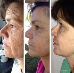 The Biological Facelift: Try Facial Gymnastics  Treatments For A Younger Look