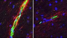 Por que a esclerose múltipla afeta quatro vezes mais as mulheres?   Disso Voce Sabia?