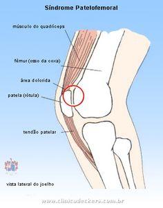 O que é a síndrome patelofemoral ?   É a dor na região anterior do joelho, na parte de trás da patela.